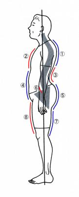 典型的な腰椎前湾症
